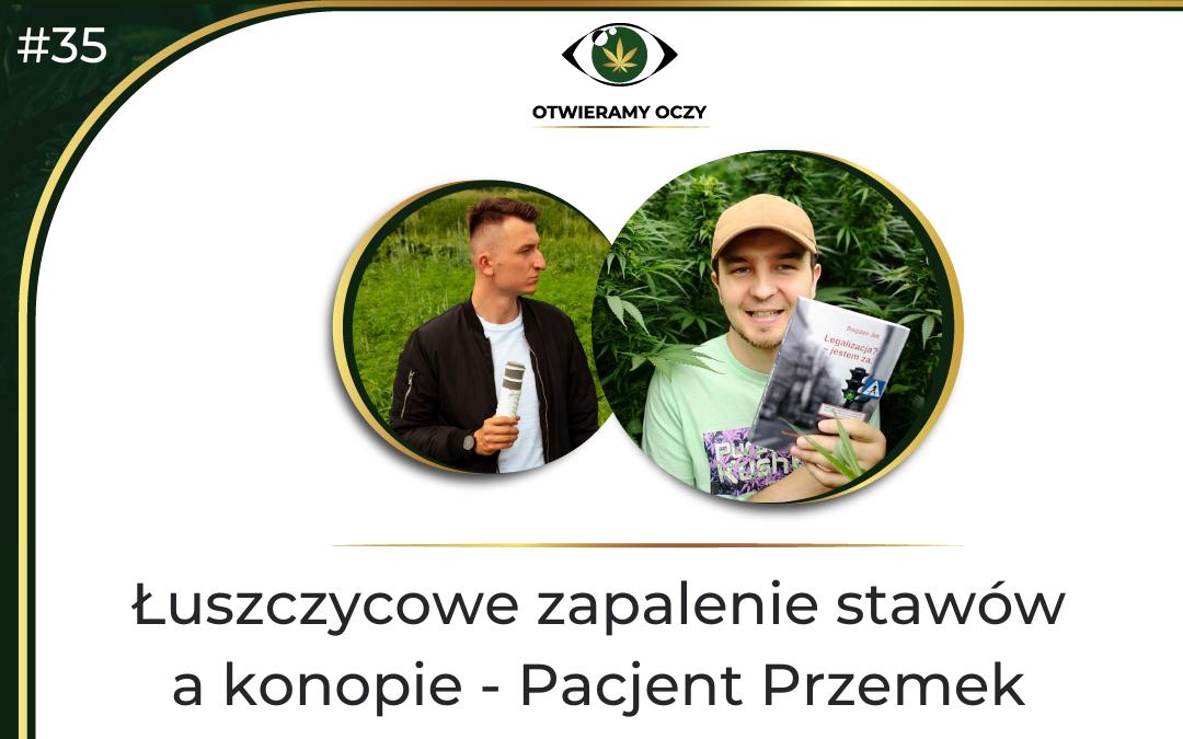 #35 Łuszczycowe zapalenie stawów a konopie – Pacjent Przemek